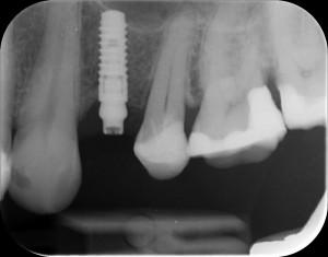 Kuva otettu implanttileikkauksen yhteydessä.