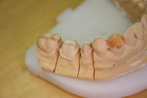 Hiotut hampaat